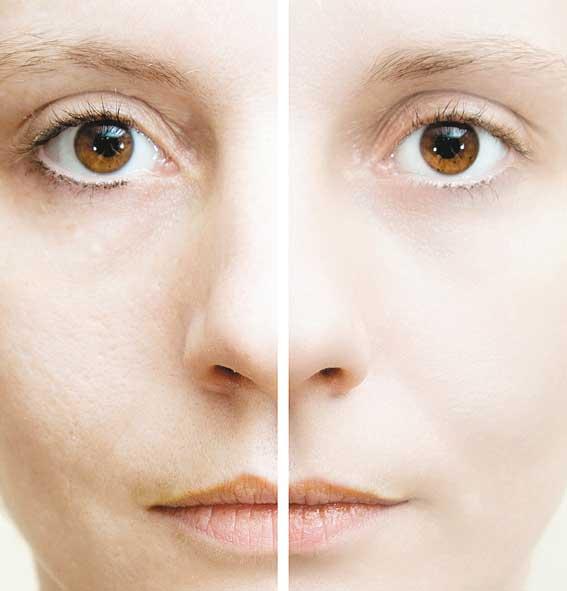 Расширенные поры на лице и как от них избавиться