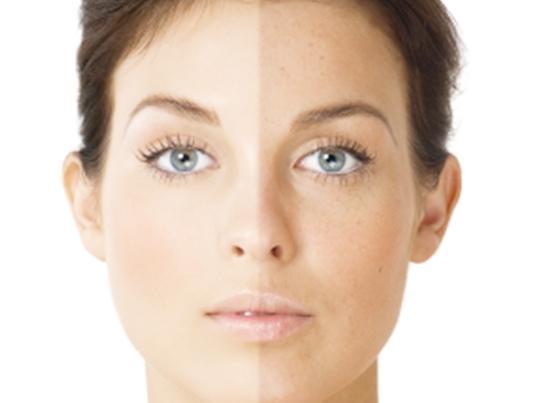 Как осветлить кожу лица домашних условиях