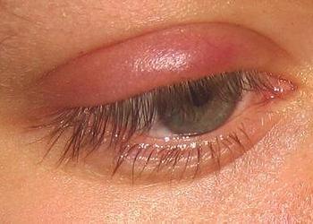 ячмень фото на глазу лечение