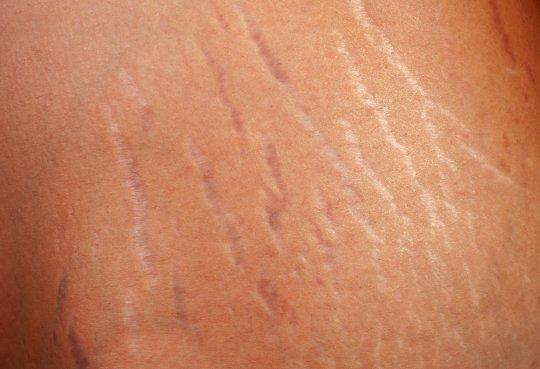 Почему на теле появляются царапины сами по себе