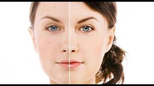 Фото к статье Как отбелить кожу лица в домашних условиях 2.jpg